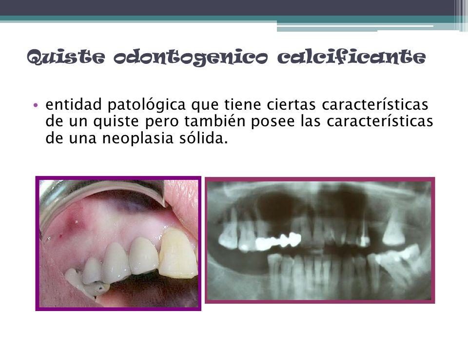 Quiste odontogenico calcificante entidad patológica que tiene ciertas características de un quiste pero también posee las características de una neopl