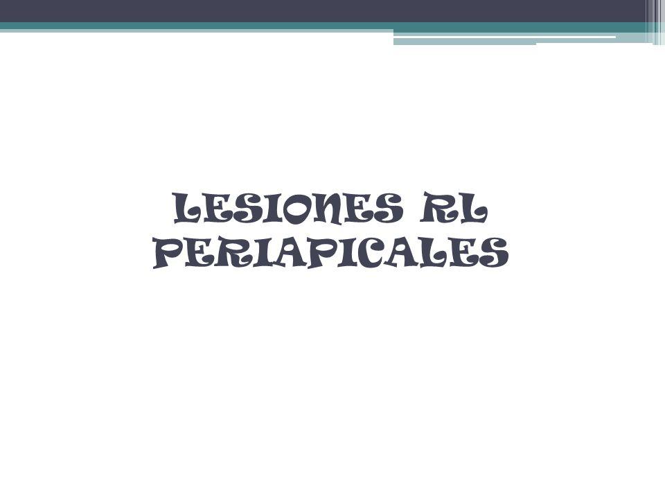 LESIONES RL PERIAPICALES