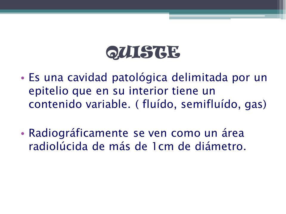 QUISTE Es una cavidad patológica delimitada por un epitelio que en su interior tiene un contenido variable. ( fluído, semifluído, gas) Radiográficamen