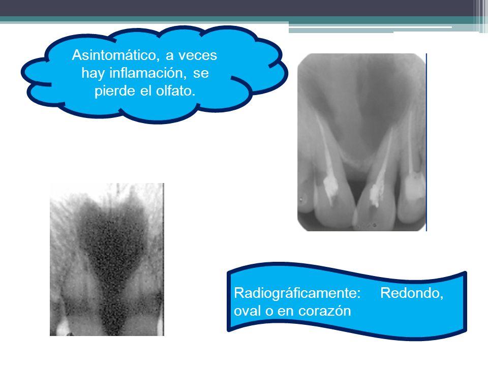 Asintomático, a veces hay inflamación, se pierde el olfato. Radiográficamente:Redondo, oval o en corazón