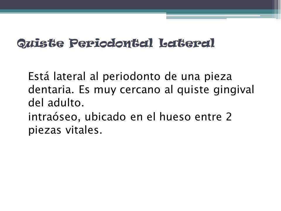 Quiste Periodontal Lateral Está lateral al periodonto de una pieza dentaria. Es muy cercano al quiste gingival del adulto. intraóseo, ubicado en el hu