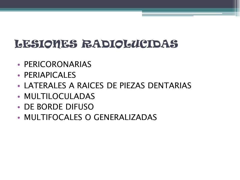 LESIONES RL PERICORONARIAS