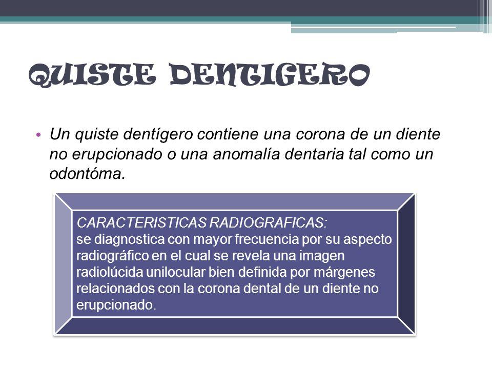 QUISTE DENTIGERO Un quiste dentígero contiene una corona de un diente no erupcionado o una anomalía dentaria tal como un odontóma. CARACTERISTICAS RAD