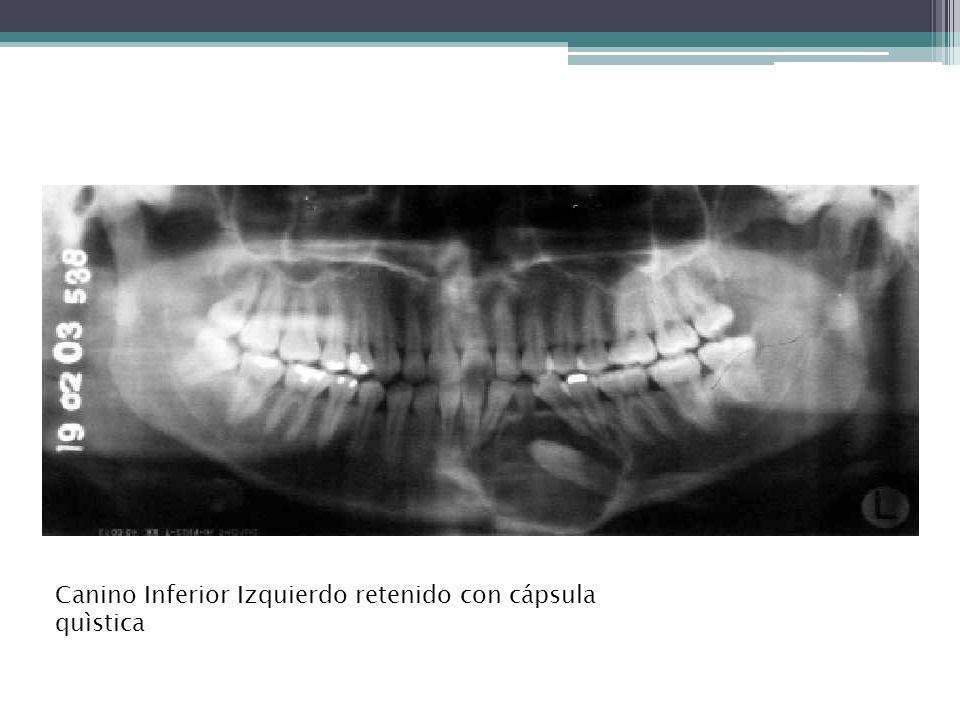 QUISTE DE ERUPCION Se forma durante el proceso de erupción de las piezas dentarias.
