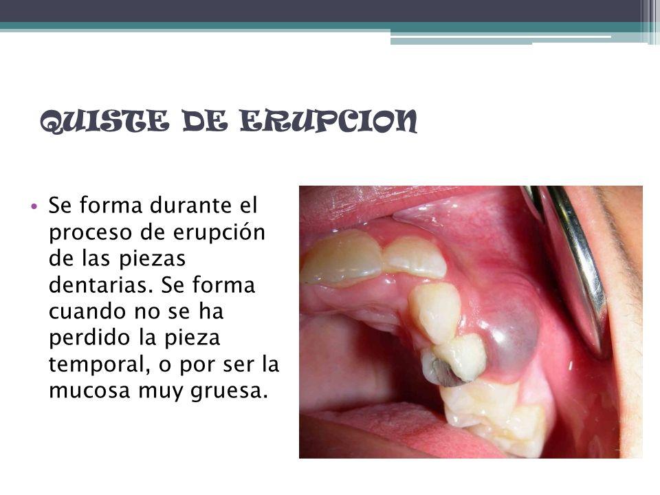 QUISTE DE ERUPCION Se forma durante el proceso de erupción de las piezas dentarias. Se forma cuando no se ha perdido la pieza temporal, o por ser la m