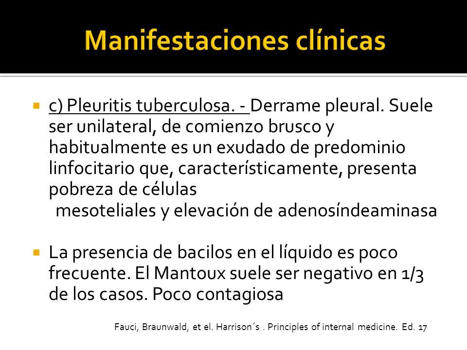 c) Pleuritis tuberculosa. - Derrame pleural. Suele ser unilateral, de comienzo brusco y habitualmente es un exudado de predominio linfocitario que, ca