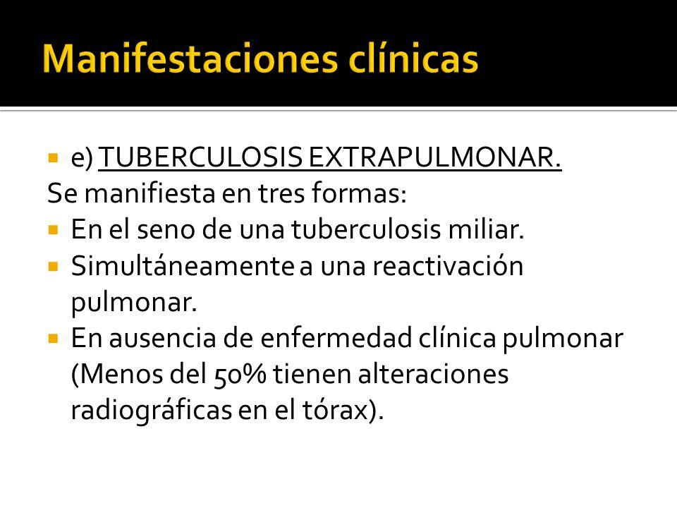 e) TUBERCULOSIS EXTRAPULMONAR. Se manifiesta en tres formas: En el seno de una tuberculosis miliar. Simultáneamente a una reactivación pulmonar. En au