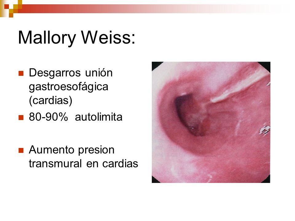 Mallory Weiss: Desgarros unión gastroesofágica (cardias) 80-90% autolimita Aumento presion transmural en cardias