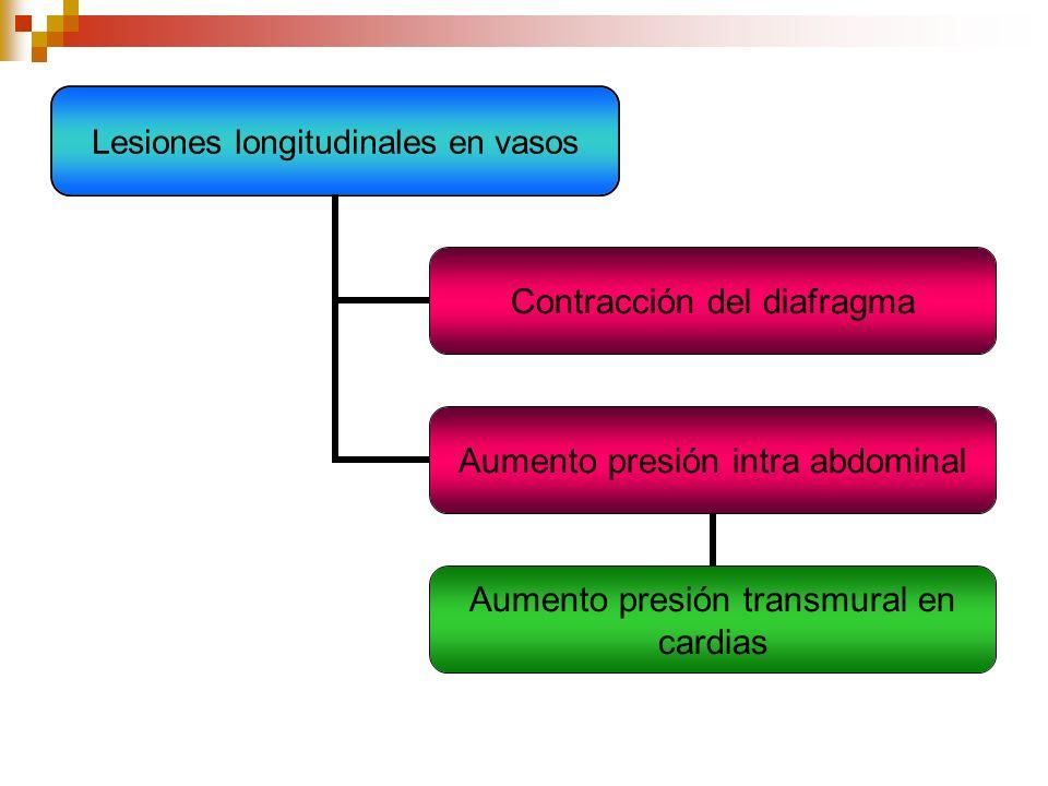 Lesiones longitudinales en vasos Contracción del diafragma Aumento presión intra abdominal Aumento presión transmural en cardias