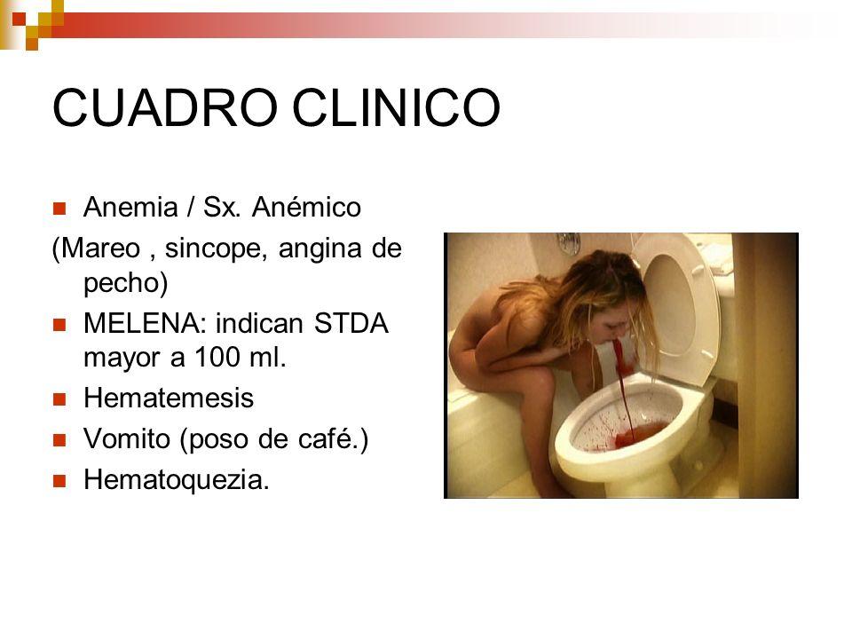 CUADRO CLINICO Anemia / Sx. Anémico (Mareo, sincope, angina de pecho) MELENA: indican STDA mayor a 100 ml. Hematemesis Vomito (poso de café.) Hematoqu