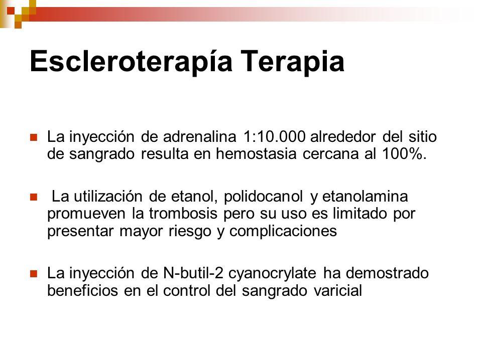 Escleroterapía Terapia La inyección de adrenalina 1:10.000 alrededor del sitio de sangrado resulta en hemostasia cercana al 100%. La utilización de et