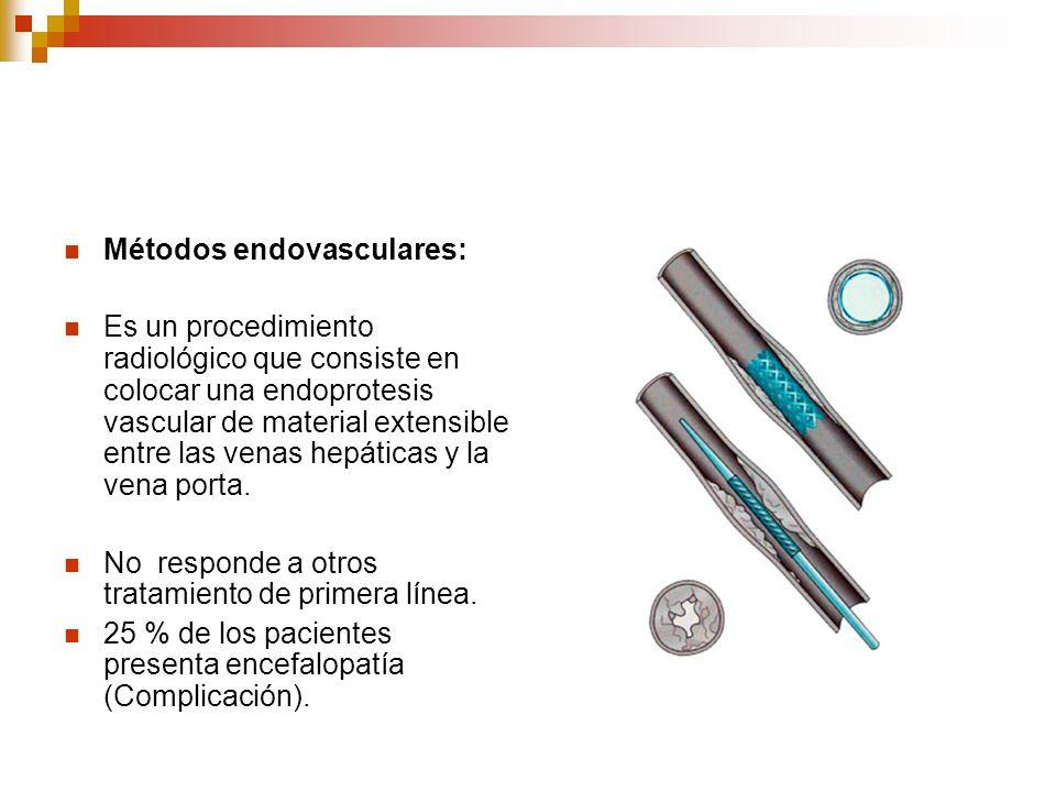 Métodos endovasculares: Es un procedimiento radiológico que consiste en colocar una endoprotesis vascular de material extensible entre las venas hepát