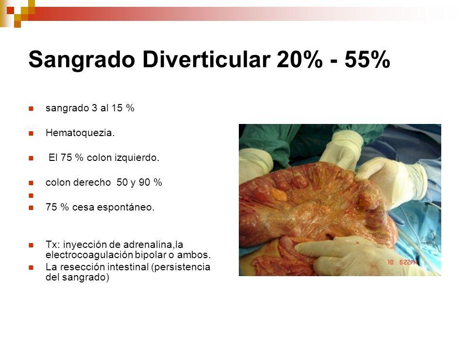 Sangrado Diverticular 20% - 55% sangrado 3 al 15 % Hematoquezia. El 75 % colon izquierdo. colon derecho 50 y 90 % 75 % cesa espontáneo. Tx: inyección