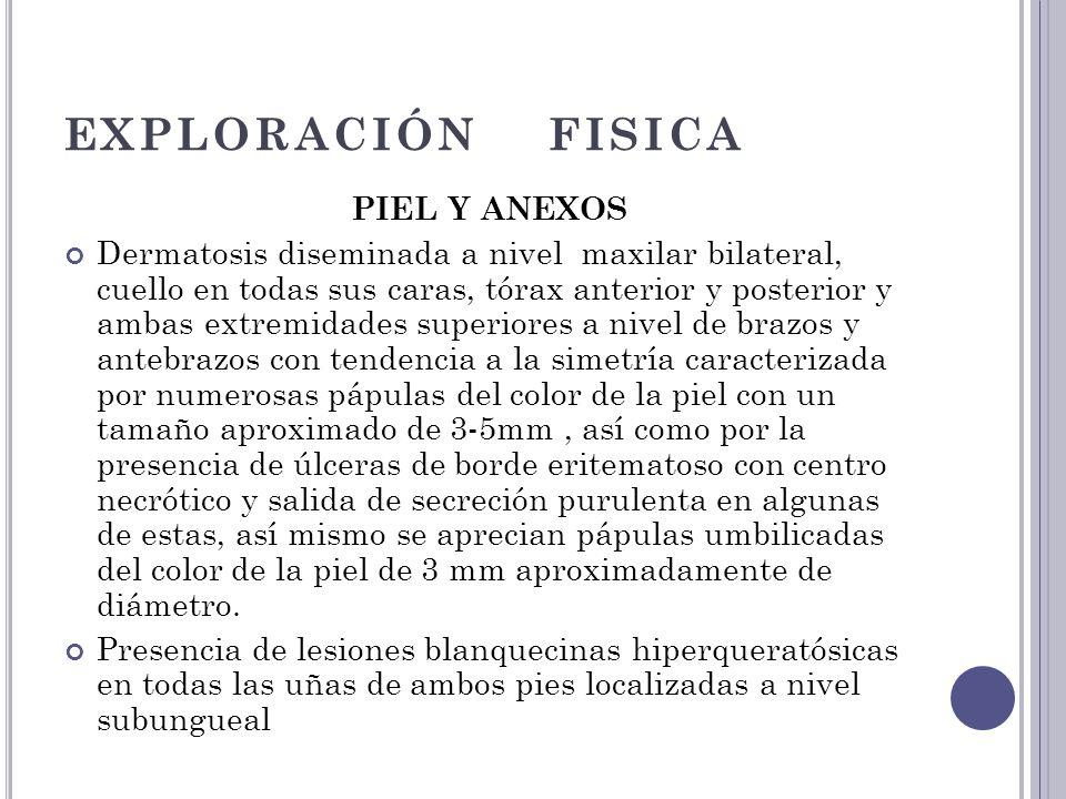 EXPLORACIÓN FISICA PIEL Y ANEXOS Dermatosis diseminada a nivel maxilar bilateral, cuello en todas sus caras, tórax anterior y posterior y ambas extrem