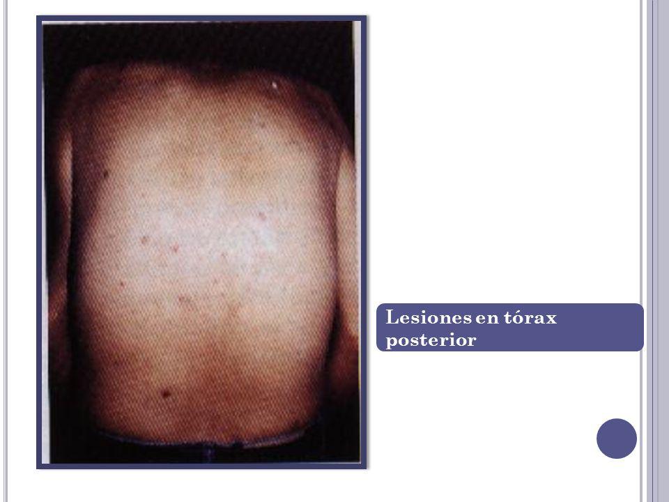 Lesiones en tórax posterior