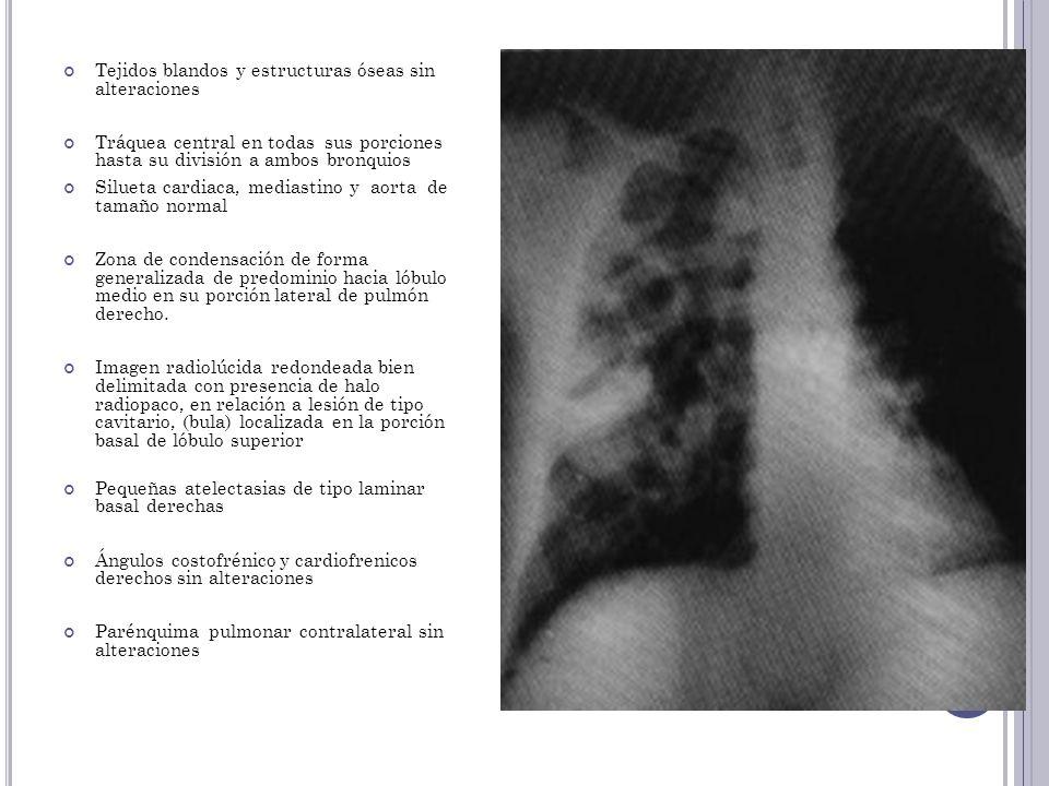 Tejidos blandos y estructuras óseas sin alteraciones Tráquea central en todas sus porciones hasta su división a ambos bronquios Silueta cardiaca, medi
