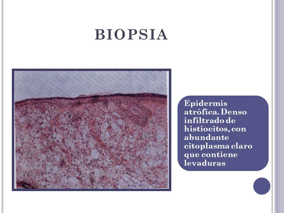 BIOPSIA Epidermis atrófica. Denso infiltrado de histiocitos, con abundante citoplasma claro que contiene levaduras