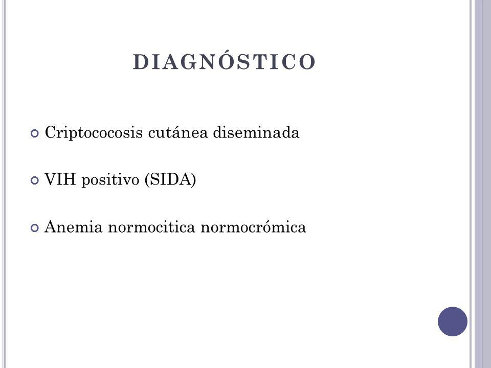 DIAGNÓSTICO Criptococosis cutánea diseminada VIH positivo (SIDA) Anemia normocitica normocrómica