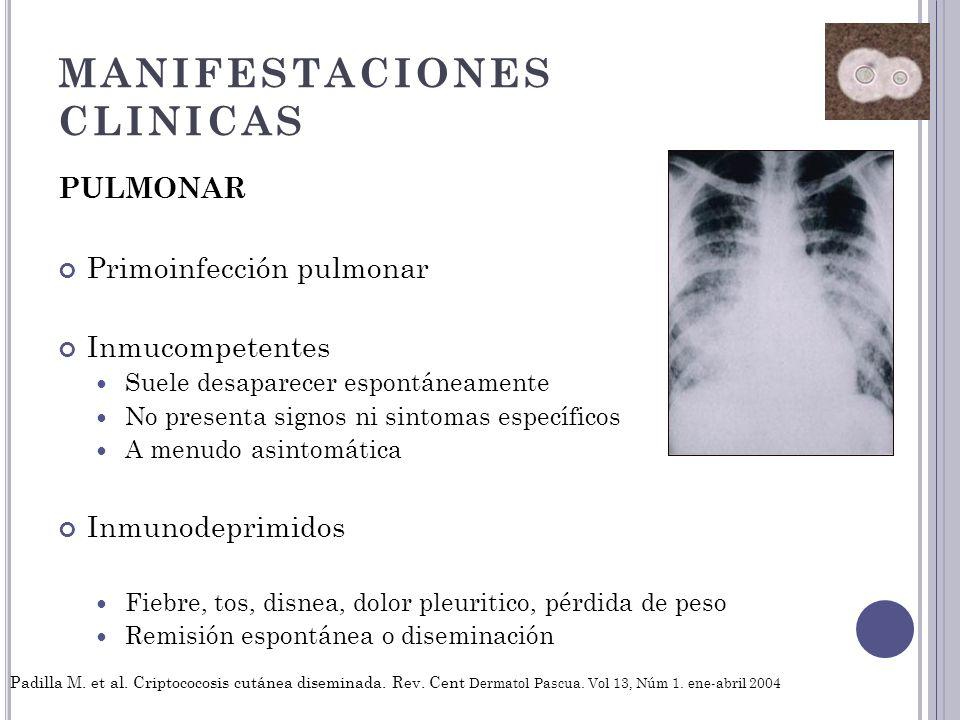 MANIFESTACIONES CLINICAS PULMONAR Primoinfección pulmonar Inmucompetentes Suele desaparecer espontáneamente No presenta signos ni sintomas específicos