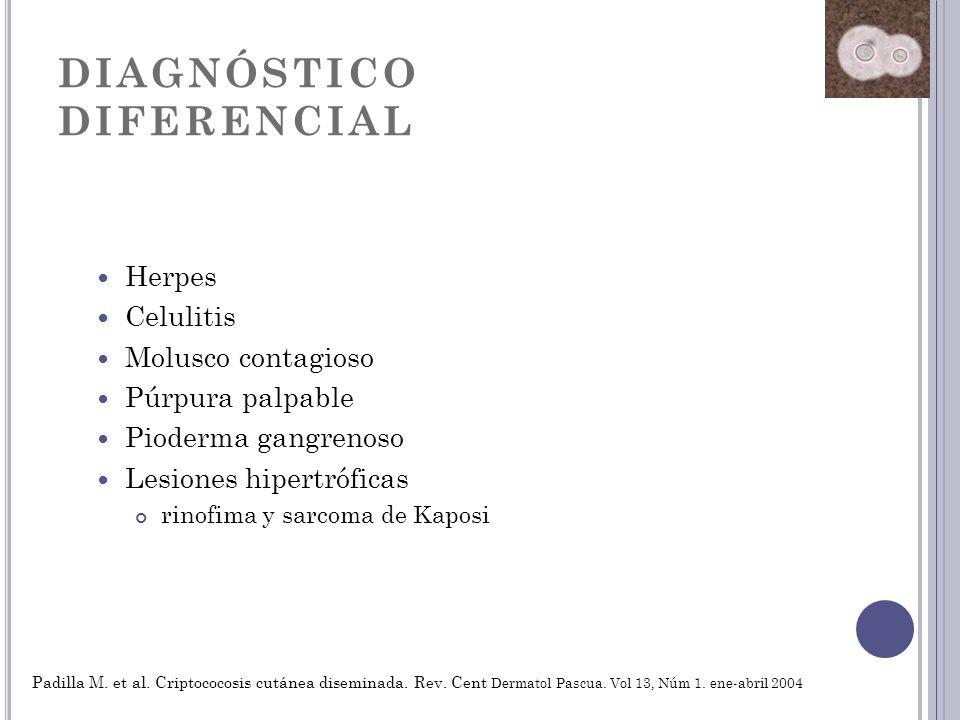 DIAGNÓSTICO DIFERENCIAL Herpes Celulitis Molusco contagioso Púrpura palpable Pioderma gangrenoso Lesiones hipertróficas rinofima y sarcoma de Kaposi P