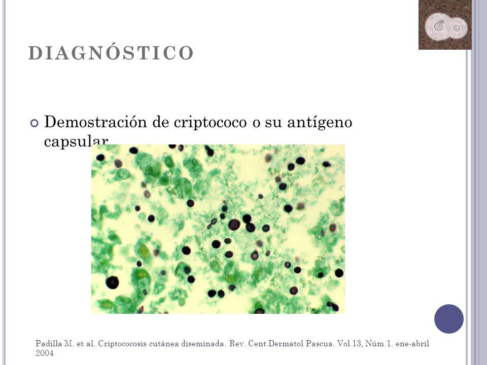 DIAGNÓSTICO Demostración de criptococo o su antígeno capsular Padilla M. et al. Criptococosis cutánea diseminada. Rev. Cent Dermatol Pascua. Vol 13, N