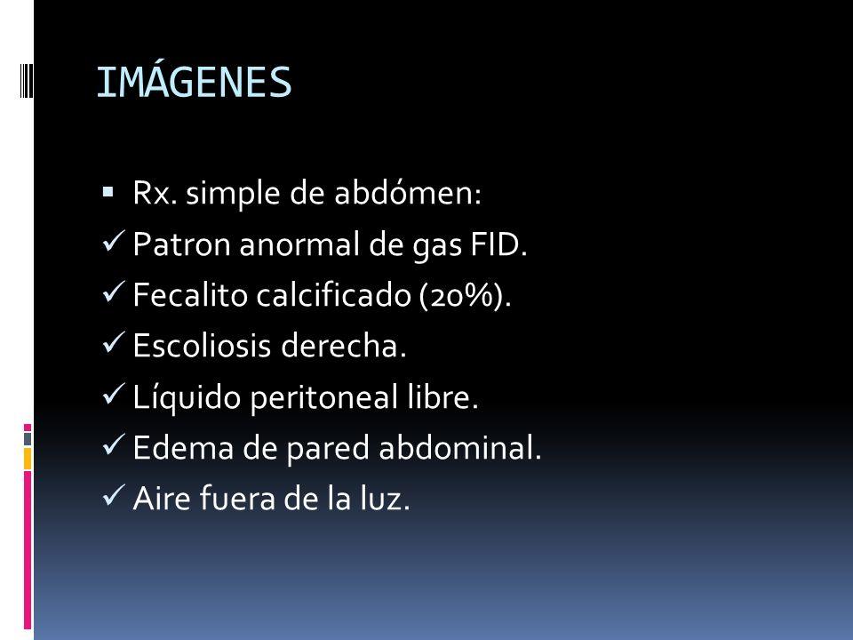 IMÁGENES Rx. simple de abdómen: Patron anormal de gas FID. Fecalito calcificado (20%). Escoliosis derecha. Líquido peritoneal libre. Edema de pared ab