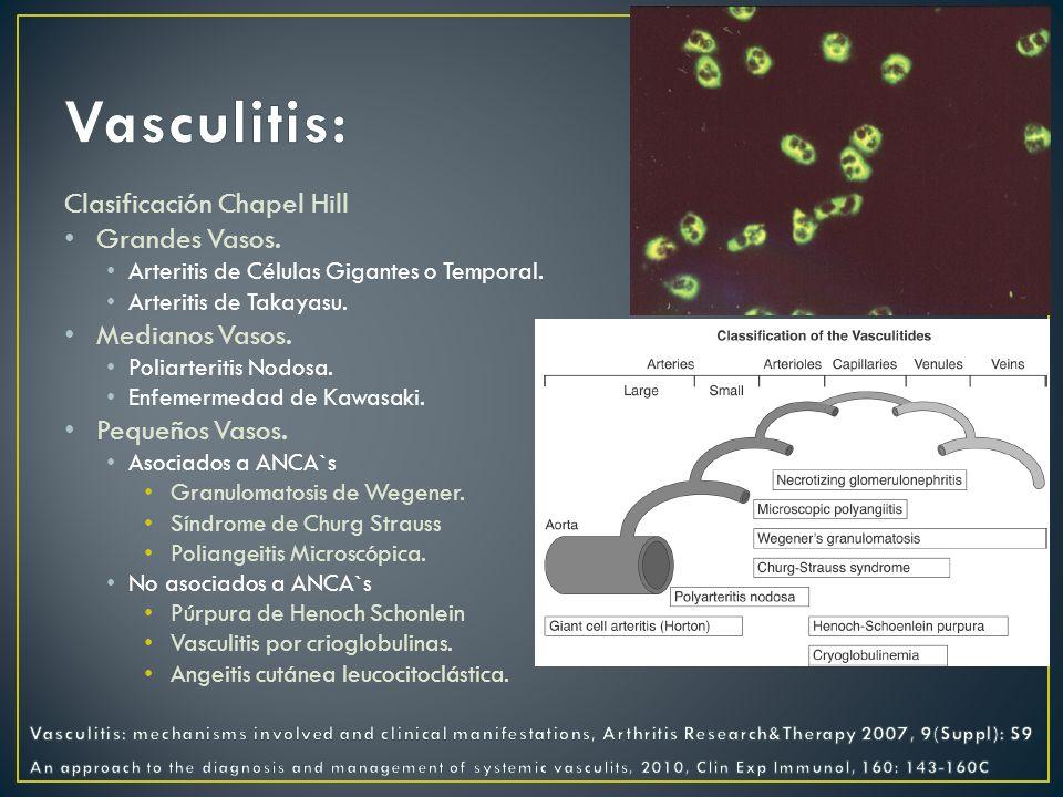 Vasculitis de medianos vasos; predominio por arterias coronarias.