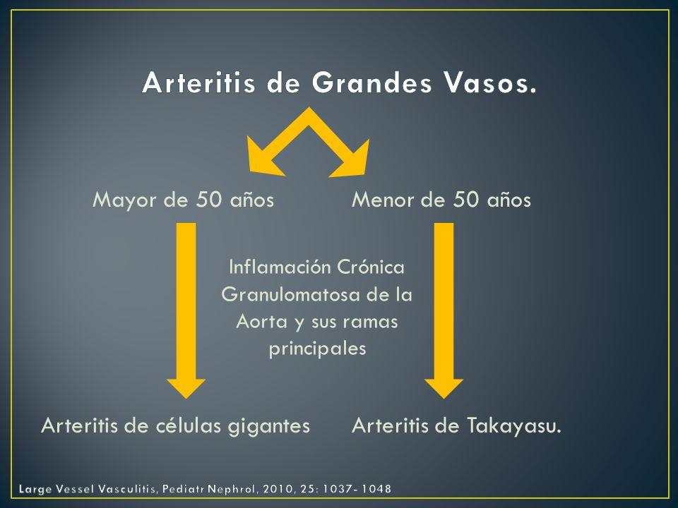 Vasculitis mas frecuente del adulto.20 casos por cada 100,000 habitantes.