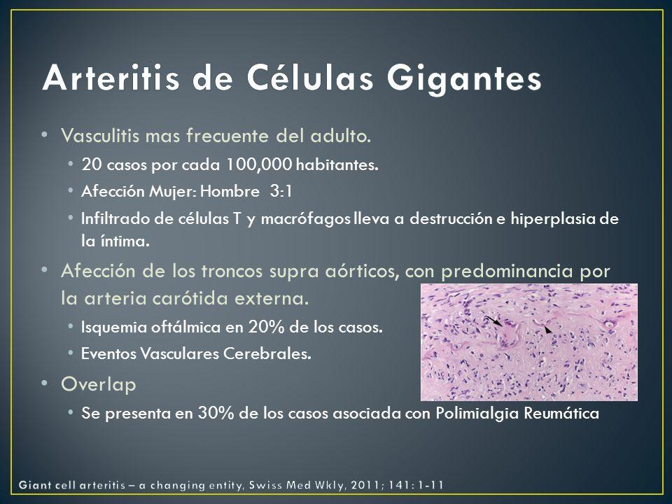 Aneurismas Coronarios.Sin tratamiento: Presentes en 85% de los casos no tratados.