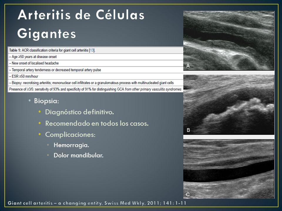 Inmunoglobulina Vasculitis asociadas ANCA´s Útil solo en casos refractarios a remisión.