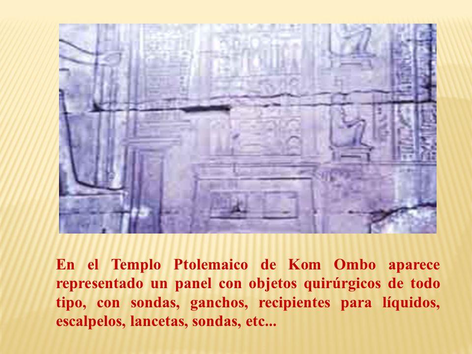 En el Templo Ptolemaico de Kom Ombo aparece representado un panel con objetos quirúrgicos de todo tipo, con sondas, ganchos, recipientes para líquidos