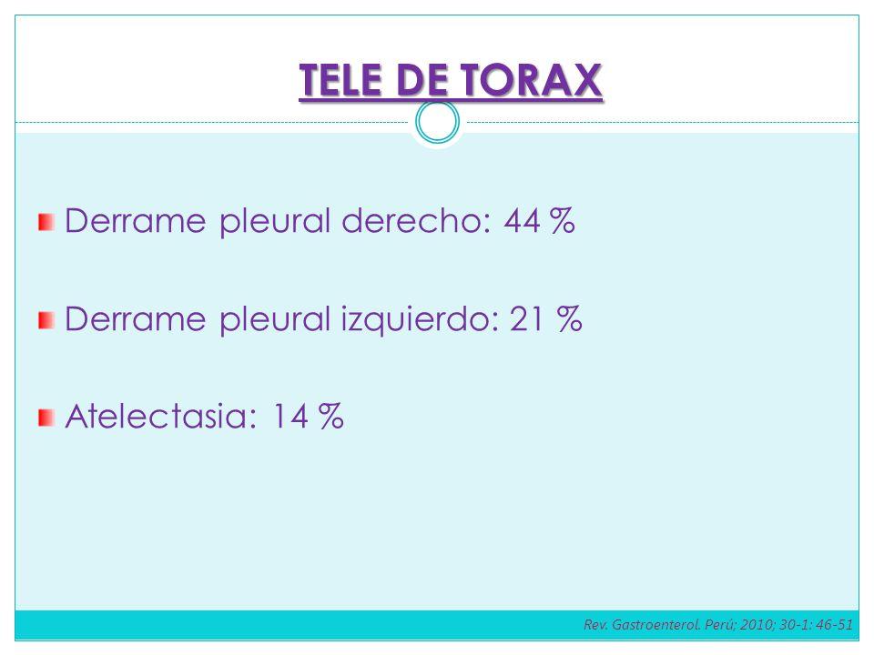 Derrame pleural derecho: 44 % Derrame pleural izquierdo: 21 % Atelectasia: 14 % TELE DE TORAX Rev. Gastroenterol. Perú; 2010; 30-1: 46-51