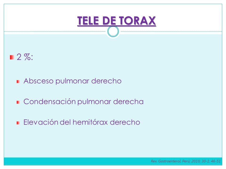 2 %: Absceso pulmonar derecho Condensación pulmonar derecha Elevación del hemitórax derecho TELE DE TORAX Rev.