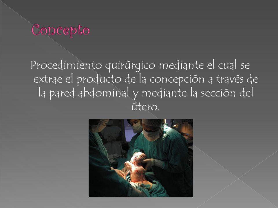 Procedimiento quirúrgico mediante el cual se extrae el producto de la concepción a través de la pared abdominal y mediante la sección del útero.