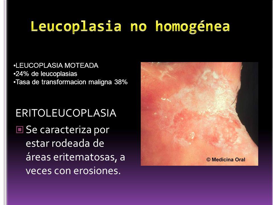 ERITOLEUCOPLASIA Se caracteriza por estar rodeada de áreas eritematosas, a veces con erosiones. LEUCOPLASIA MOTEADA 24% de leucoplasias Tasa de transf