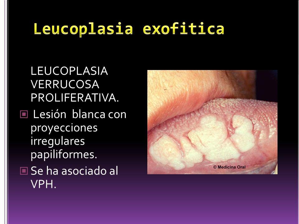 LEUCOPLASIA VERRUCOSA PROLIFERATIVA. Lesión blanca con proyecciones irregulares papiliformes. Se ha asociado al VPH.