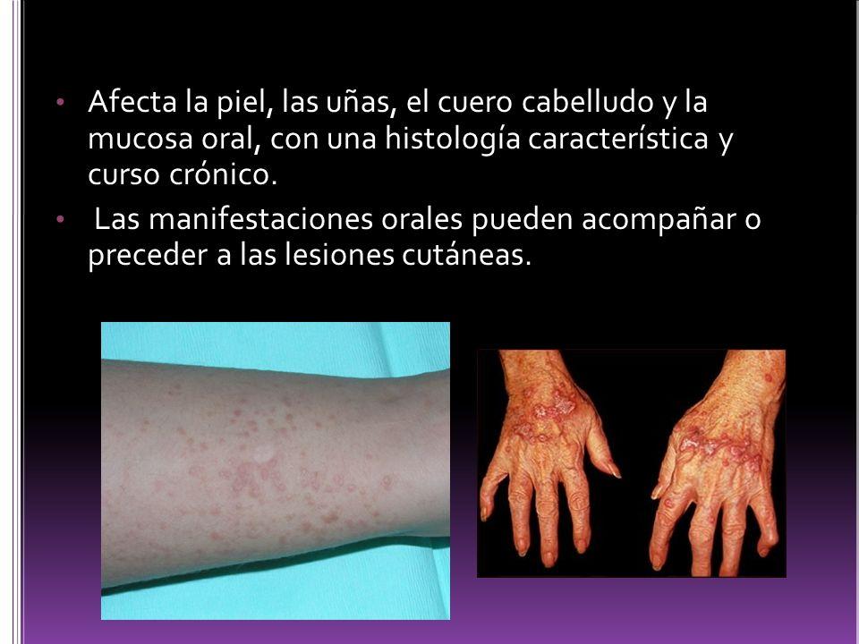Afecta la piel, las uñas, el cuero cabelludo y la mucosa oral, con una histología característica y curso crónico. Las manifestaciones orales pueden ac