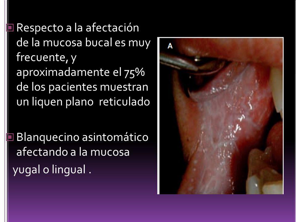 Respecto a la afectación de la mucosa bucal es muy frecuente, y aproximadamente el 75% de los pacientes muestran un liquen plano reticulado Blanquecin