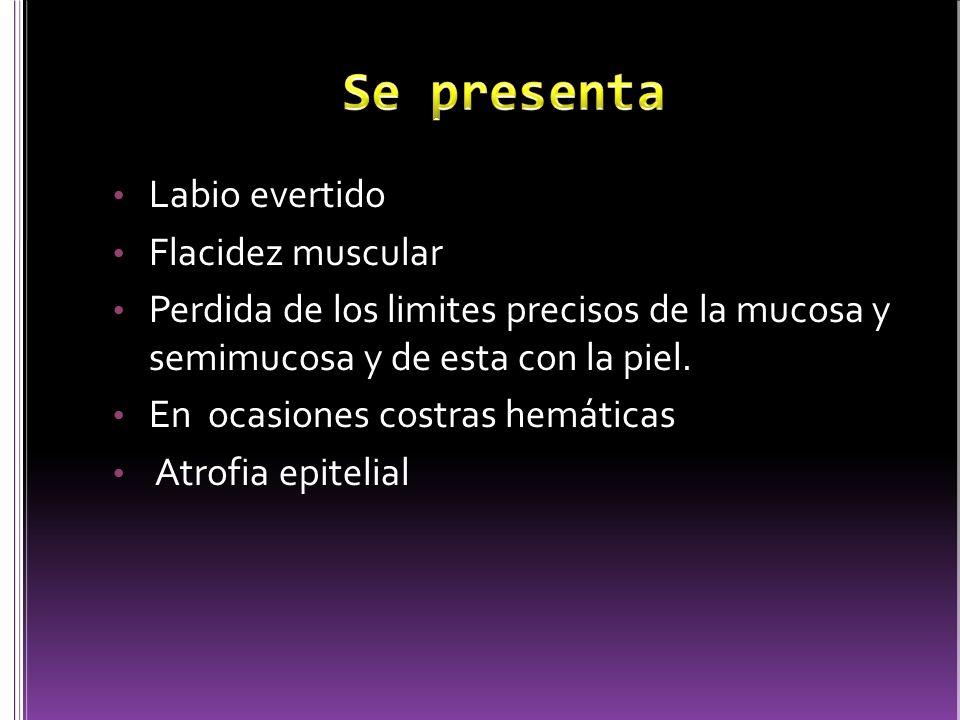 Labio evertido Flacidez muscular Perdida de los limites precisos de la mucosa y semimucosa y de esta con la piel. En ocasiones costras hemáticas Atrof