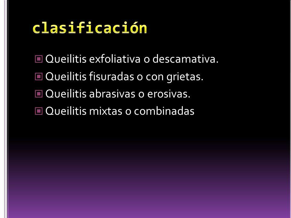 Queilitis exfoliativa o descamativa. Queilitis fisuradas o con grietas. Queilitis abrasivas o erosivas. Queilitis mixtas o combinadas