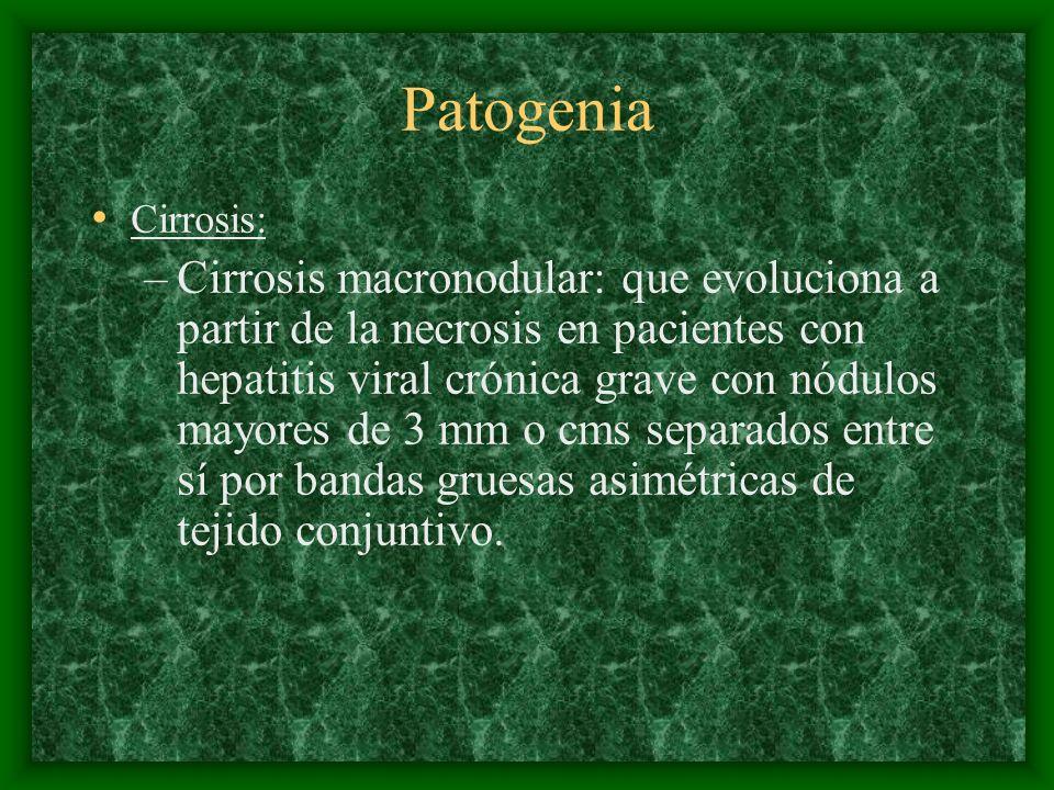 Patogenia Cirrosis: –Cirrosis macronodular: que evoluciona a partir de la necrosis en pacientes con hepatitis viral crónica grave con nódulos mayores