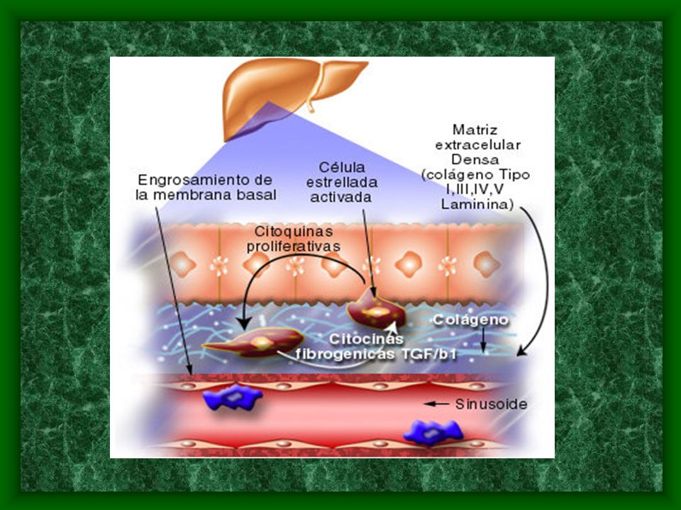 Fisiopatologia Con el aumento progresivo y descontrolado de matriz extracelular fibrosa, ocurre la alteración en el normal funcionamiento de los vasos sinusoides y los hepatocitos adyacentes.
