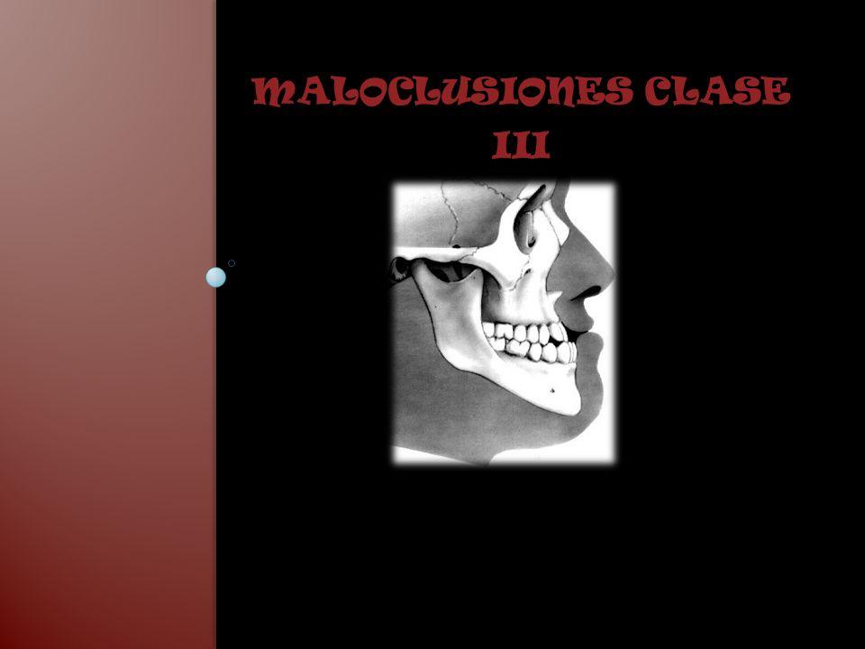 CLASE III Según la clasificación de Angle, se caracterizan por una posición mesial de la arcada dentaria inferior con respecto a la superior.