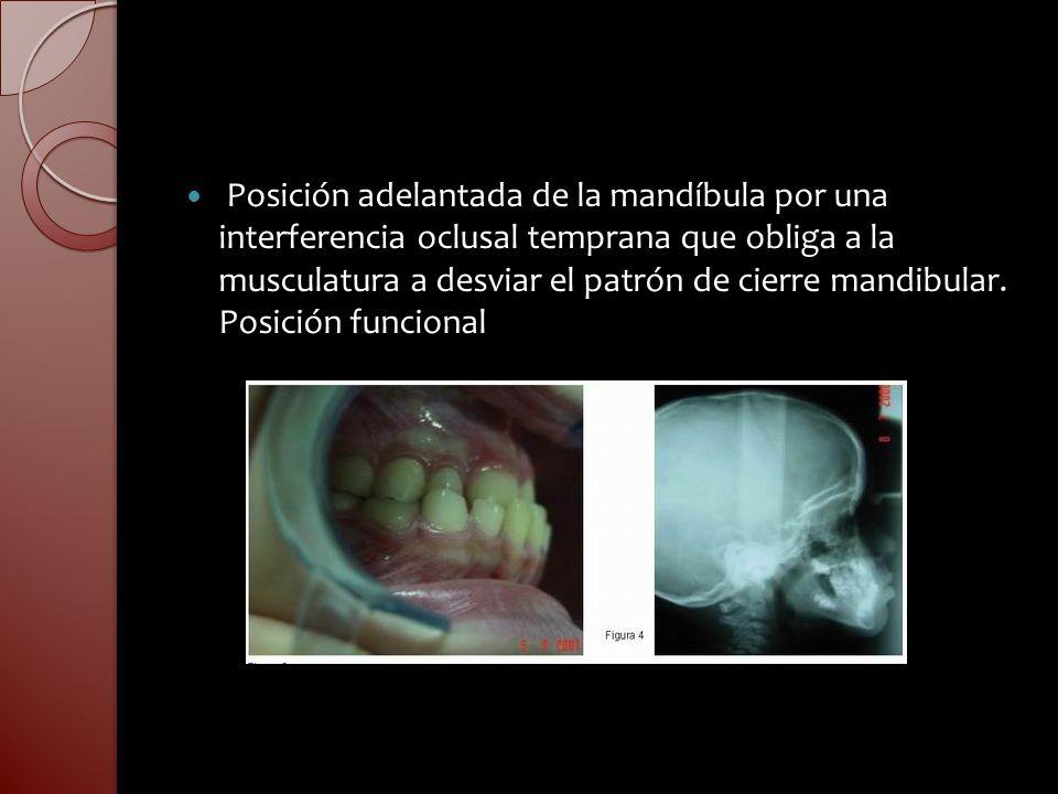 Posición adelantada de la mandíbula por una interferencia oclusal temprana que obliga a la musculatura a desviar el patrón de cierre mandibular. Posic