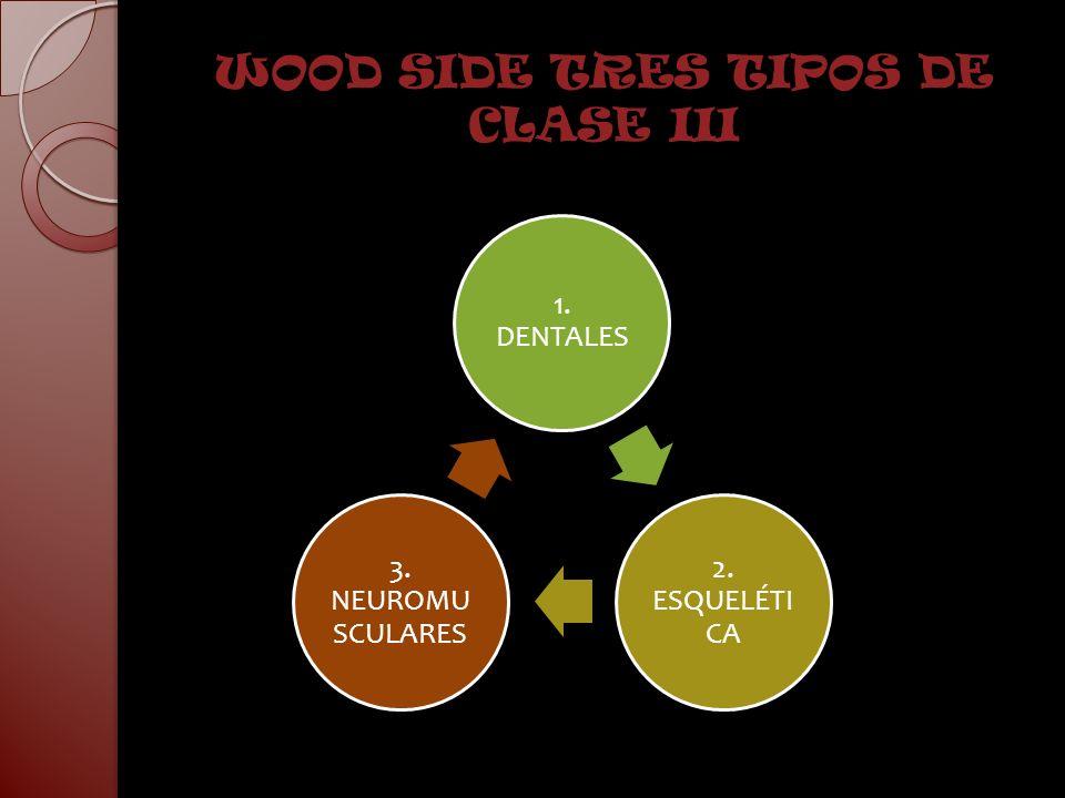 WOOD SIDE TRES TIPOS DE CLASE III 1. DENTALES 2. ESQUELÉTI CA 3. NEUROMU SCULARES
