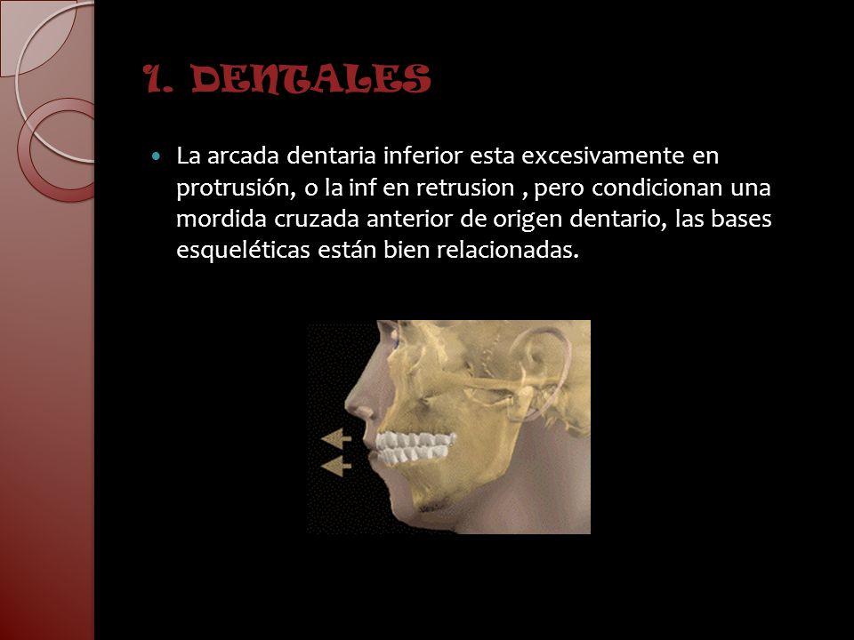 1. DENTALES La arcada dentaria inferior esta excesivamente en protrusión, o la inf en retrusion, pero condicionan una mordida cruzada anterior de orig