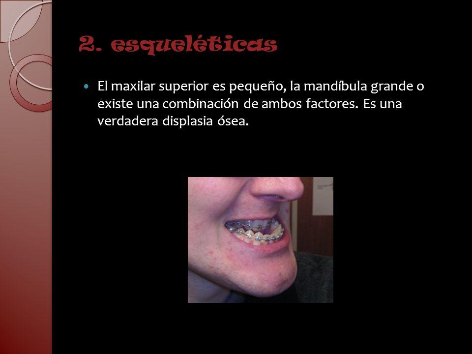 2. esqueléticas El maxilar superior es pequeño, la mandíbula grande o existe una combinación de ambos factores. Es una verdadera displasia ósea.
