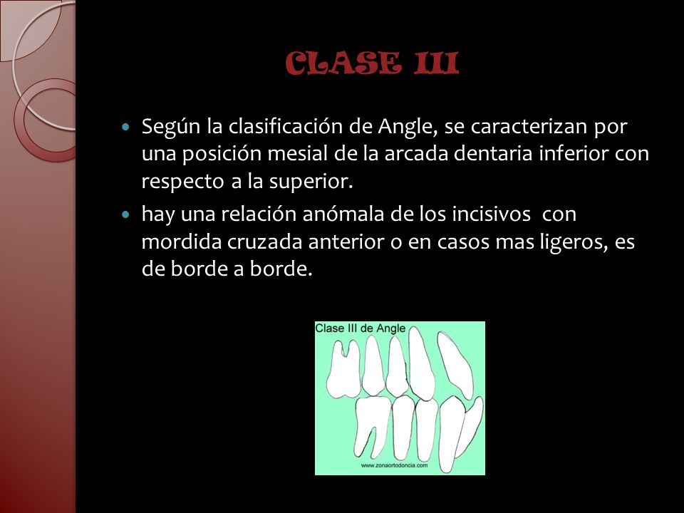 CLASE III Según la clasificación de Angle, se caracterizan por una posición mesial de la arcada dentaria inferior con respecto a la superior. hay una