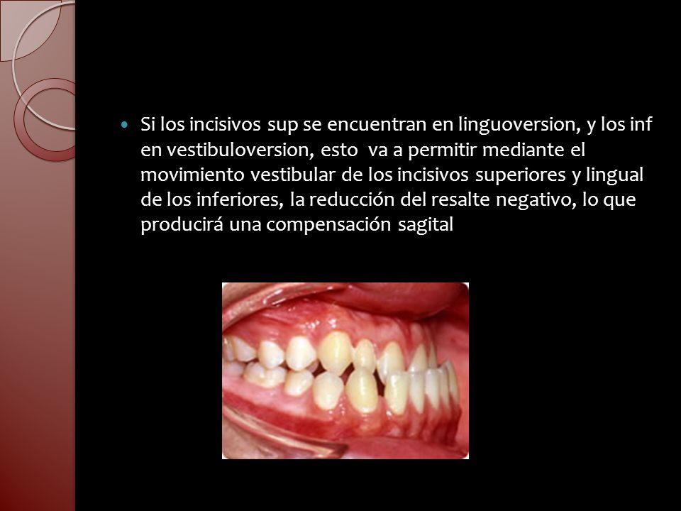 Si los incisivos sup se encuentran en linguoversion, y los inf en vestibuloversion, esto va a permitir mediante el movimiento vestibular de los incisi