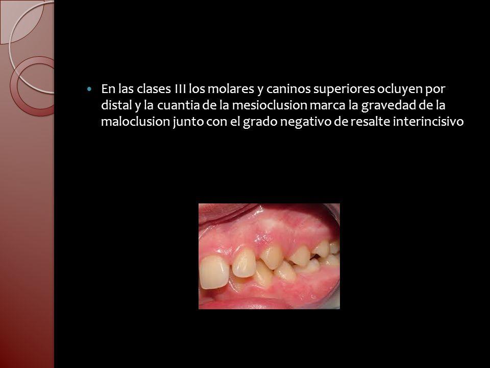 En las clases III los molares y caninos superiores ocluyen por distal y la cuantia de la mesioclusion marca la gravedad de la maloclusion junto con el